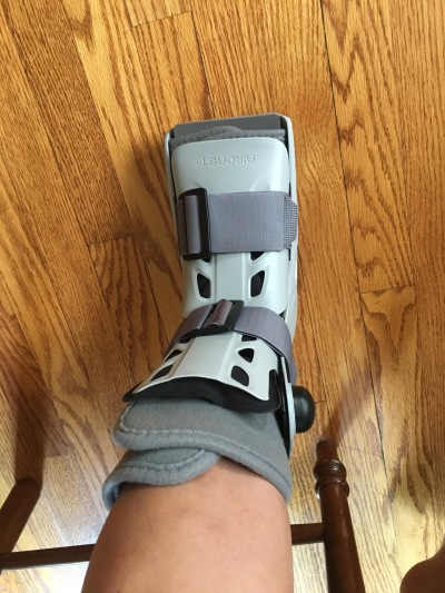 062217 Stress fracture 2